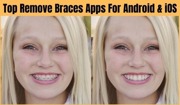 Best Remove Braces Apps For Android and iOS